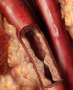 image_artery_plaque_atheroma